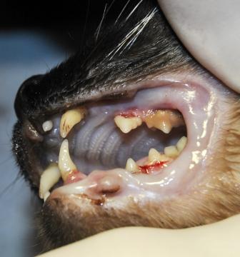 Extrusión del diente